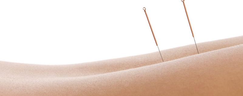 acupuntura para la  ansiedad